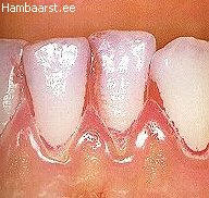 Hambakatu värvimine