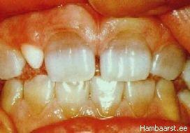 Tetratsükliini tõttu värvunud hambad
