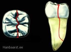 Poolitunud hammas