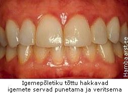 gingiviit