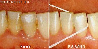 Hambavahe enne ja pärast hambaniidi kasutamist