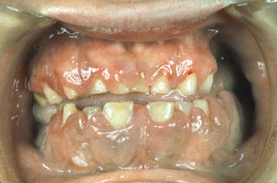 gingivaalne hüpertroofia