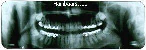 Röntgenpilt hammastest